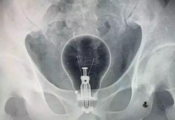 男子下体塞灯泡取不出来了……外科医生告你怎么办